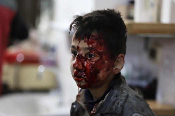 bambino ferito in volto