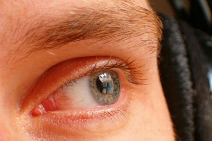 occhio uomo sogno