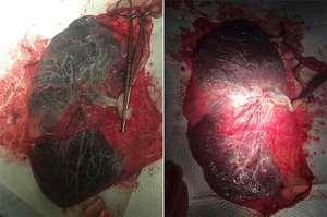 Placentofagia, mangiare la placenta