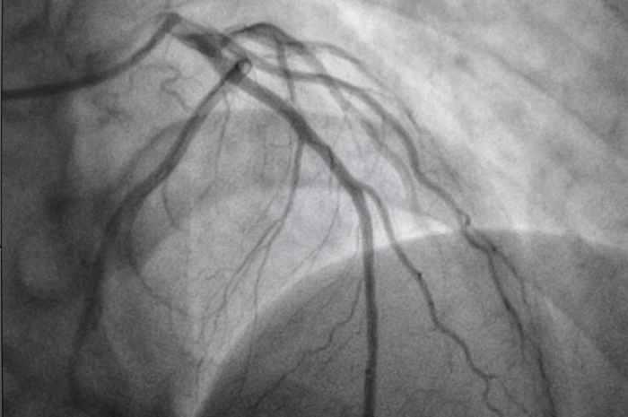 Benefici angiografia coronarica precoce dopo arresto cardiaco