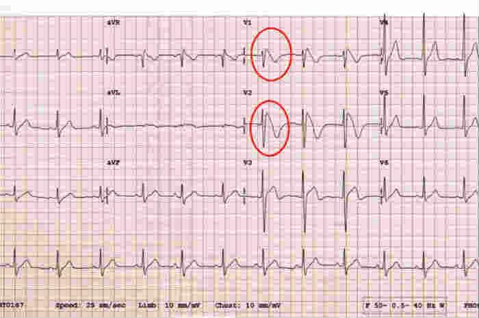 Lettura ed interpretazione dell'ECG