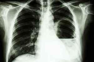 Ascesso polmonare