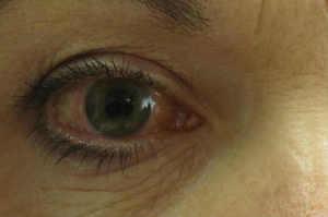 Glaucoma, il silenzioso ladro della vista