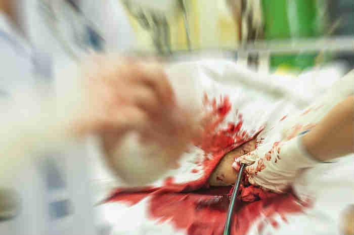 Lesioni ai polmoni da trauma penetrante