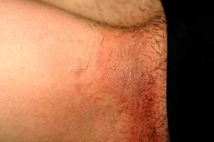 Dermatiti associate all'incontinenza - IAD