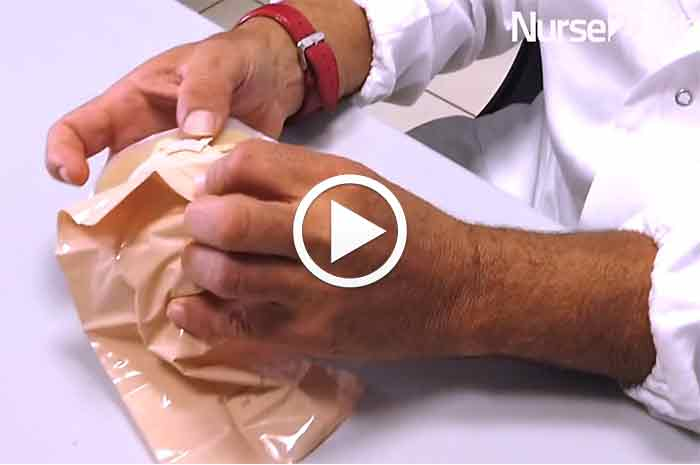 Colostomia, sicurezza e discrezione col nuovo dispositivo a capsula