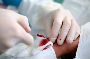 Sistema di fissaggio dei cateteri arteriosi periferici
