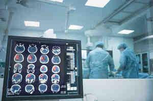 Derivazione ventricolare esterna, cos'è e a cosa serve