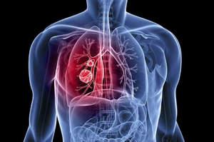 Update sul cancro polmonare, corso Ecm a Fano