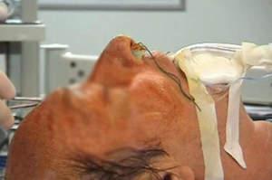 L'infermiere nella polmonite associata a ventilazione (Vap)