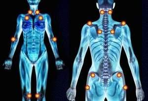 Fibromialgia: una terapia