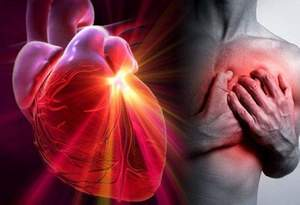 Infarto miocardico conoscere per sopravvivere: ecco come