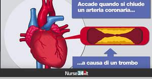 Infarto acuto del miocardio. Come riconoscere i sintomi